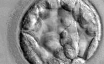 Medizinethikerin für Reform des geltenden Embryonenschutzgesetzes